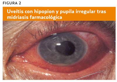 dolor del globo ocular causas